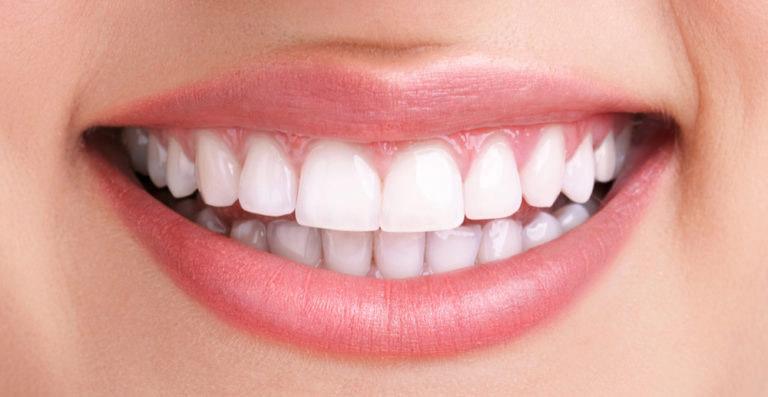 Después del blanqueamiento dental